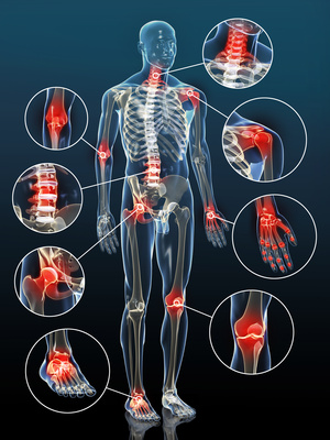 Joint inflammation by arthrosis